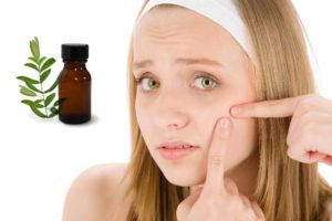 How To Use Tea Tree Oil For Acne And Acne Scars   Nature's